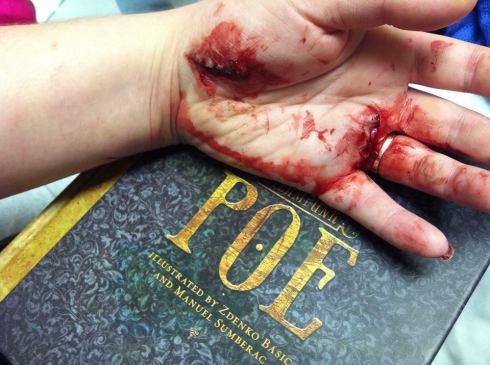 Poe bleeding